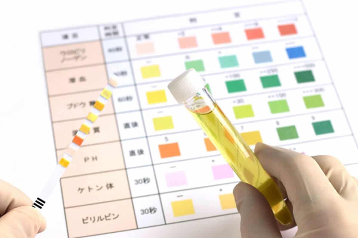慢性腎臓病の特徴・試験管イメージ