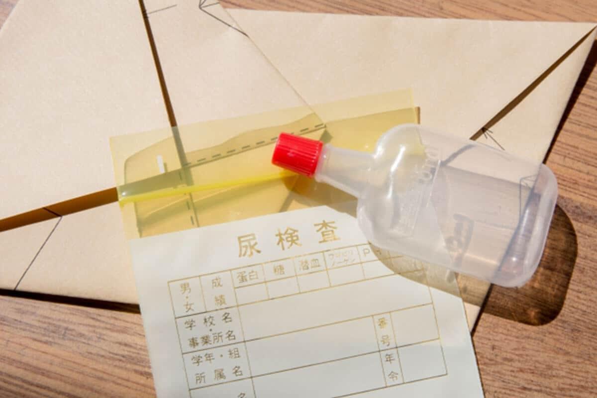 慢性腎臓病(CKD)尿検査イメージ