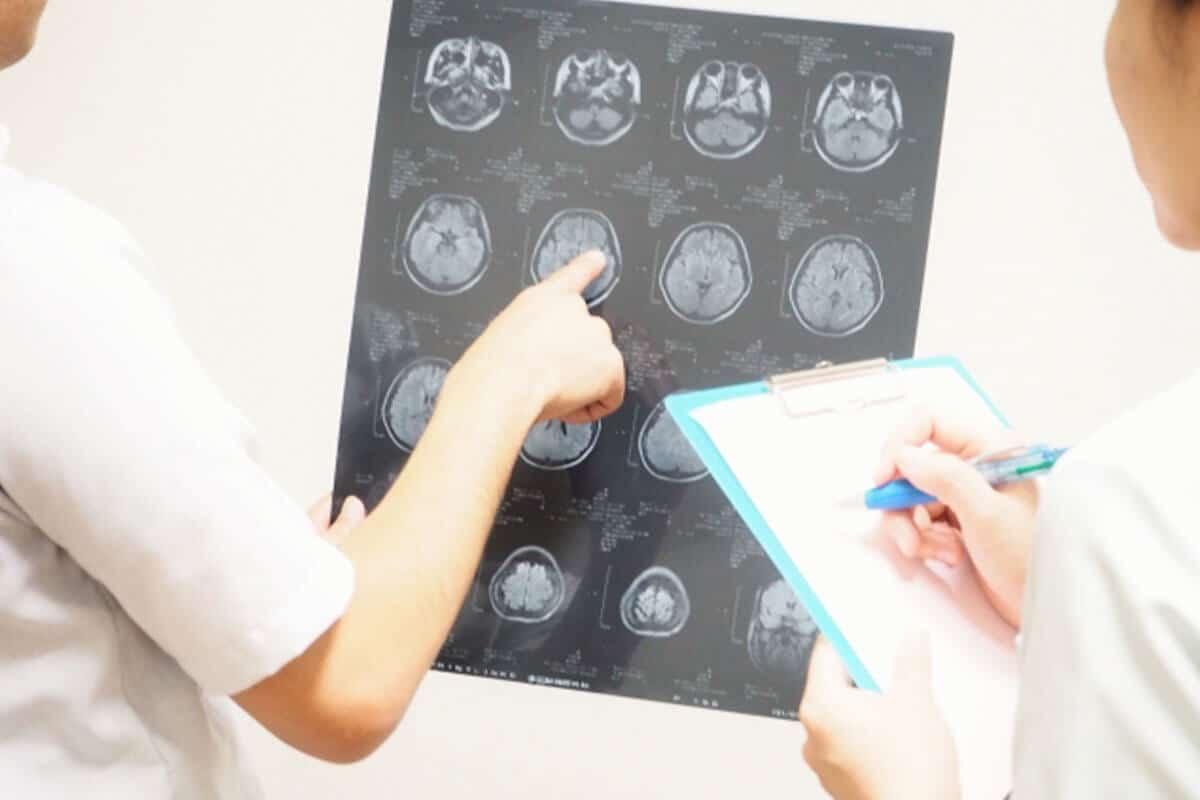 てんかん原因脳梗塞脳挫傷原因イメージ