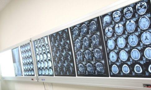 大動脈解離のCTスキャンイメージ