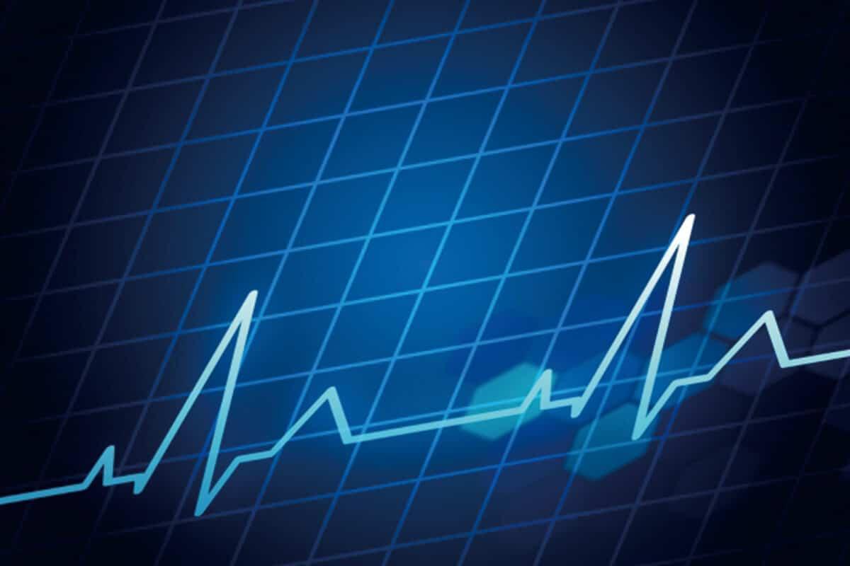 動悸検査診断イメージ