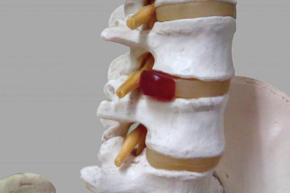 椎間板ヘルニア_椎間板模型