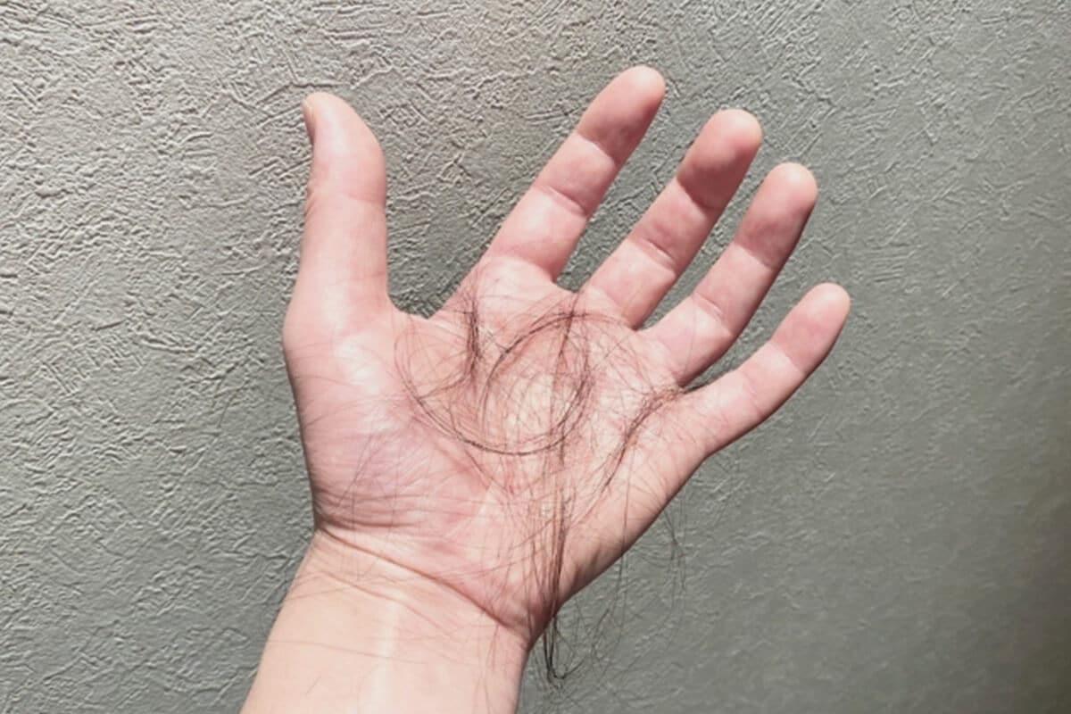 抜け毛のイメージ