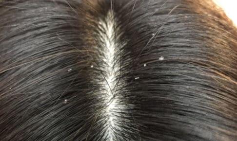 抜け毛の症状フケイメージ